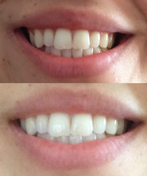 Want A Brighter Whiter Smile Colgate Optic White Review